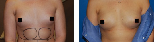 fat-transfer-breast-augmentation