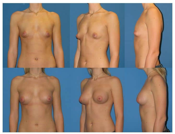 Breast Augmentation Fat Transfer 6