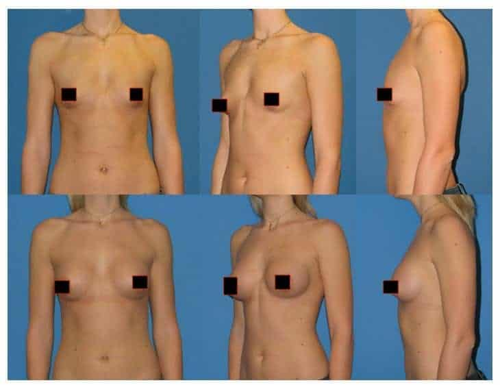 Fat Transfer Breast Augmentation Pros Cons Cost And Is It Worth